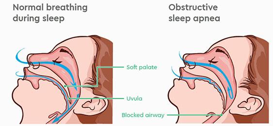 Sleep Apnea air way